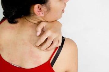 Сердобойный дерматит