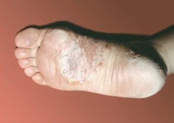 Как лечить пустулезный псориаз на ладонях и подошве