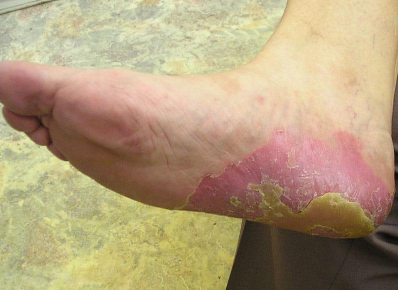 Фото 2. Стопа после использования крема Лостерин в монотерапии