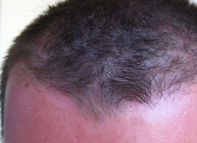 Фото 2. Псориаз волосистой части головы после применения крема Лостерин