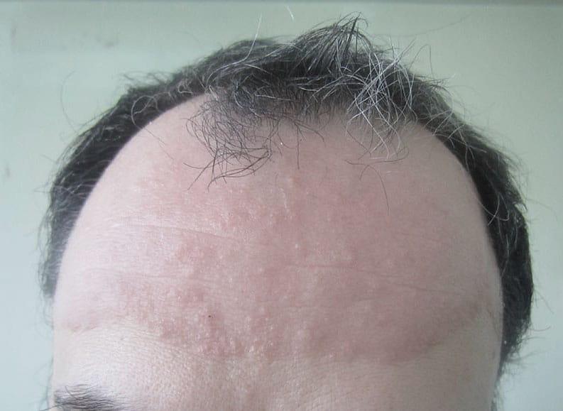 Фото 2. Псориаз волосистой части головы после применения шампуня Лостерин
