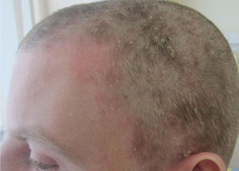 Фото 1. Псориаз волосистой части головы до применения шампуня Лостерин