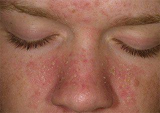 Незаметный обширный себорейный дерматит