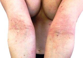 Атопический дерматит у детей средства для купания