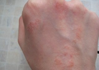 Сильный дерматит на коже