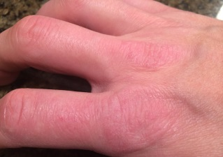Покраснение и сухость кожи рук