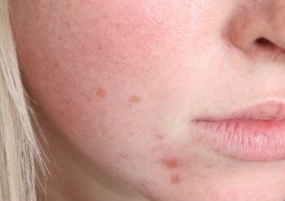 Сухая кожа лица без воспаления