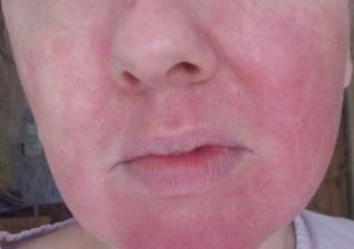 Сухая кожа лица с воспалением