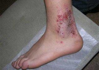 Микробная экзема ног