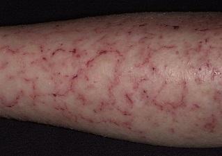 Сухая экзема кожи ноги