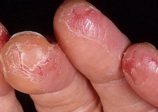 Экзема пальцев рук