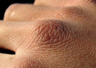 Сухая кожа тыльной стороны ладони