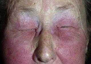Аллергический дерматит лица
