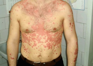 Псориаз кожи живота и груди