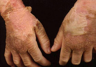 Ихтиоз на руках