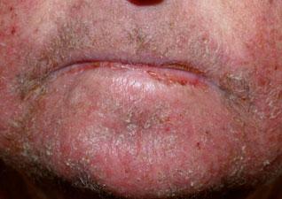 Ксероз лицевой части головы