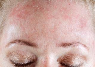 Сухая, шелушащаяся кожа на лице