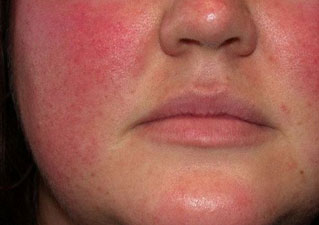 Разраженная кожа лица
