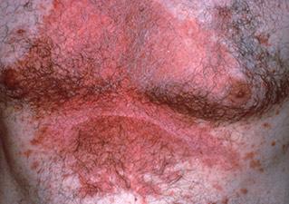 Эритродермическая форма псориаза