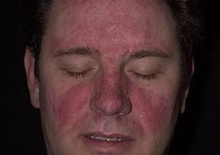 Как различить псориаз и себорейный дерматит