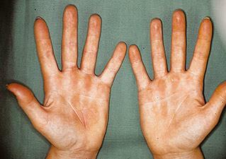Проявление контактного дерматита