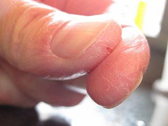Что делать если у вас сухая кожа рук?
