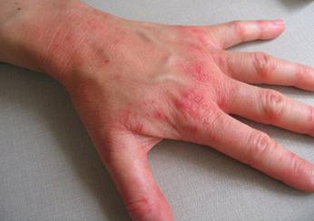 Как лечить симптомы псориаза у взрослых