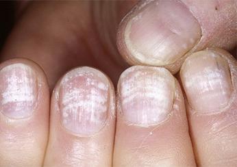 Псориаз ногтей лечение фото на руках и ногах отзывы