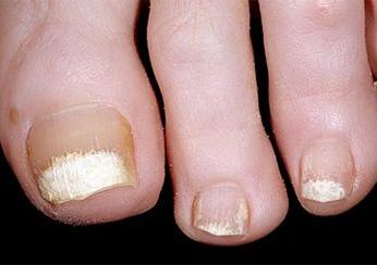 Симптомы псориаза: ухудшение состояния ногтей