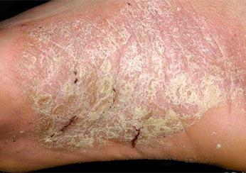 Трещины на пятках от псориаза