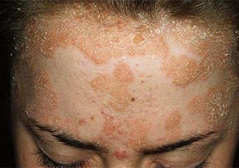 Стадии псориаза и признаки проявления на лице