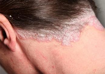 Псориаз волосистой части головы на шее у женщины