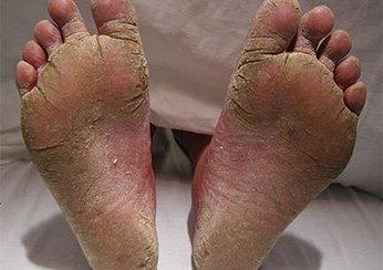 Причины симптомы и стадии псориаза