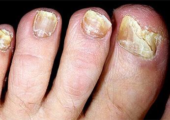 Чем лечить кожу вокруг ногтя после шеллака