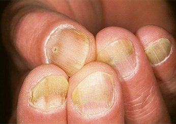 Можно ли различить псориаз и грибок ногтей