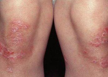 Экзема на ногах фото лечение
