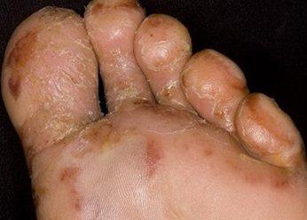 Дисгидротическая экзема стоп ноги взрослого человека
