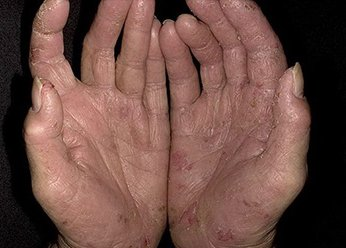 Экзема на руках до применения Лостерин