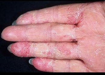 Экзема на руках до применения препаратов Лостерин