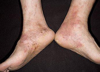 Роговая, тилотическая, мозолевидная экзема на ногах