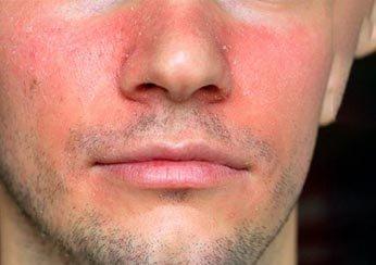 Симптомы себорейного дерматита: покраснение и шелушение