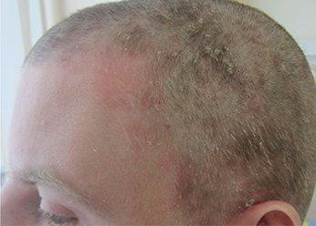 Фото себорейного дерматита до применения Лостерин