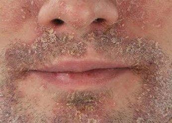 дерматит на лице взрослого человека