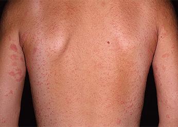 Фото дерматита у детей на спине