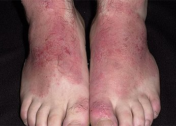 Атопический дерматит стоп у детей фото