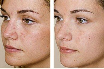 Себорейный дерматит на лице взрослого.