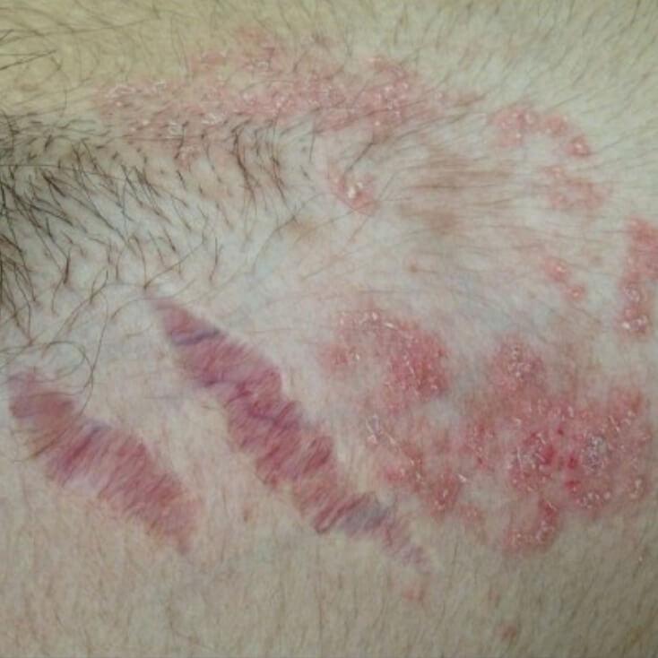 Атрофический дерматит симптомы и лечение у детей