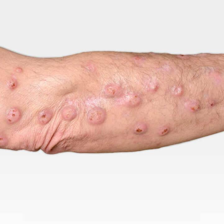 Дерматит у взрослых: причины, симптомы, лечение, фото